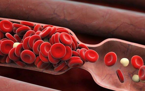 pembekuan darah