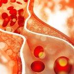Waspada, Anak Muda Juga Bisa Terkena Kolesterol