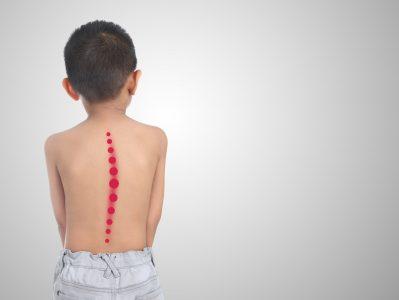 skoliosis pada anak