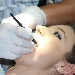 Ekspert radzi - jak dbać o zęby zimą