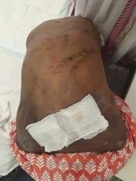 Indian maid tortured by employer rescued