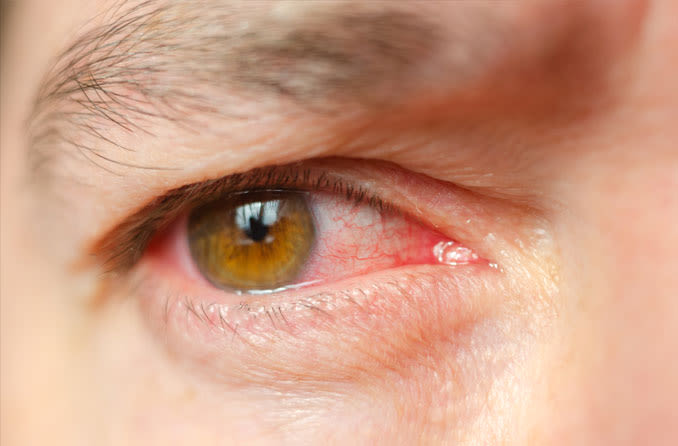 Chinese doctors report coronavirus can survive in the human eye