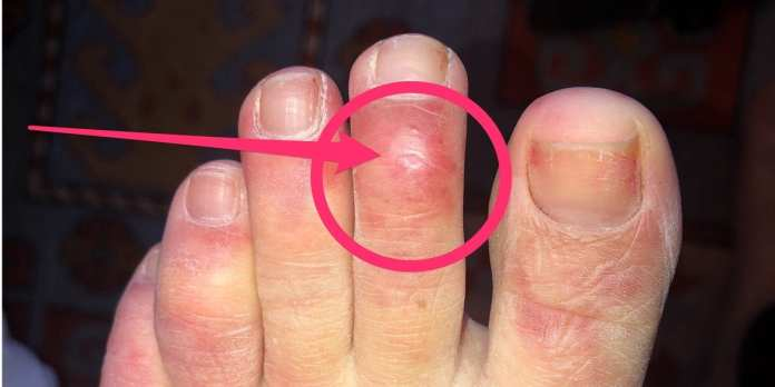 'COVID toe' and other rashes