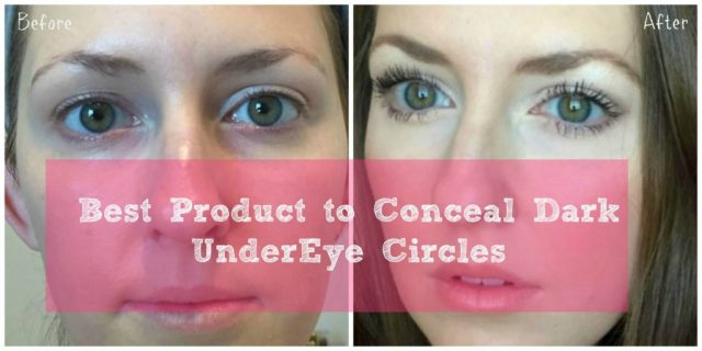 best product to conceal dark undereye circles