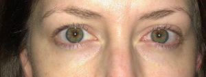 ViiCode Oxygen Eye Masks