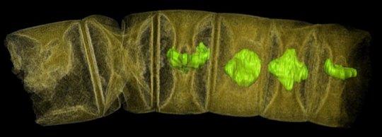 Fossile d'une algue rouge. Image prise aux rayons X, les couleurs sont ajoutées. (Photo: Stefan Bengtson - CCAL - http://bit.ly/2nJ0Rp3)
