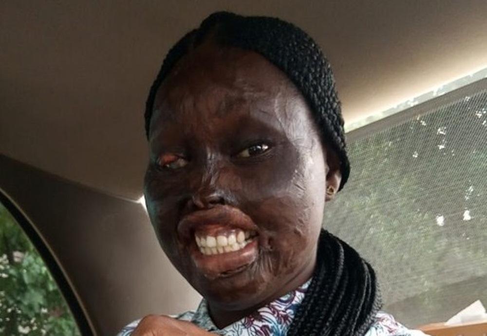 Victime d'une attaque à l'acide et après avoir perdu la vue d'œil, cette jeune fille obtient son diplôme de biochimie malgré son handicap