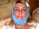 Susan Rhodes recuperating after surgery on her jaw (Image courtesy Susan Rhodes)