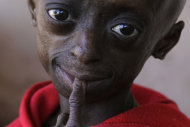 In this photo taken Wednesday, Aug. 24, 2011 progeria sufferer Ontlametse Phalatse is photographed at her home in Hebron, near Pretoria, South Africa. 12-year-old Phalatse, who resembles an ageing woman, is the only known black female born with the extremely rare premature ageing disease. (AP Photo/Denis Farrell)