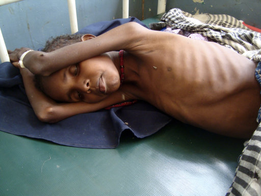A malnourished child from southern Somalia lies on a bed at  the Banadir hospital in Mogadishu, Somalia, Monday, July 25, 2011. Some thousands of people have arrived in Mogadishu seeking aid and The World Food Program executive director Josette Sheeran said Saturday they can't reach the estimated 2.2 million Somalis in desperate need of aid who are in militant-controlled areas of Somalia.(AP Photo/Farah Abdi Warsameh)