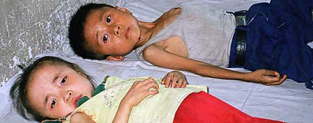 Two young children suffering from malnutrition rest in a a bed at the children's ward in Pongsan countrty hospital, about 62 miles south of the North Korean capital of Pyongyang. (AP Photo/Oxfam,Mabel Au)
