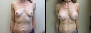 Saline Breast Augmentation