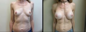 Saline Breast Augmentation