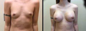 Silicone Breast Augmentation