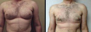 gynecomastia mastectomy