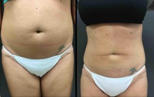 liposuction abdoment