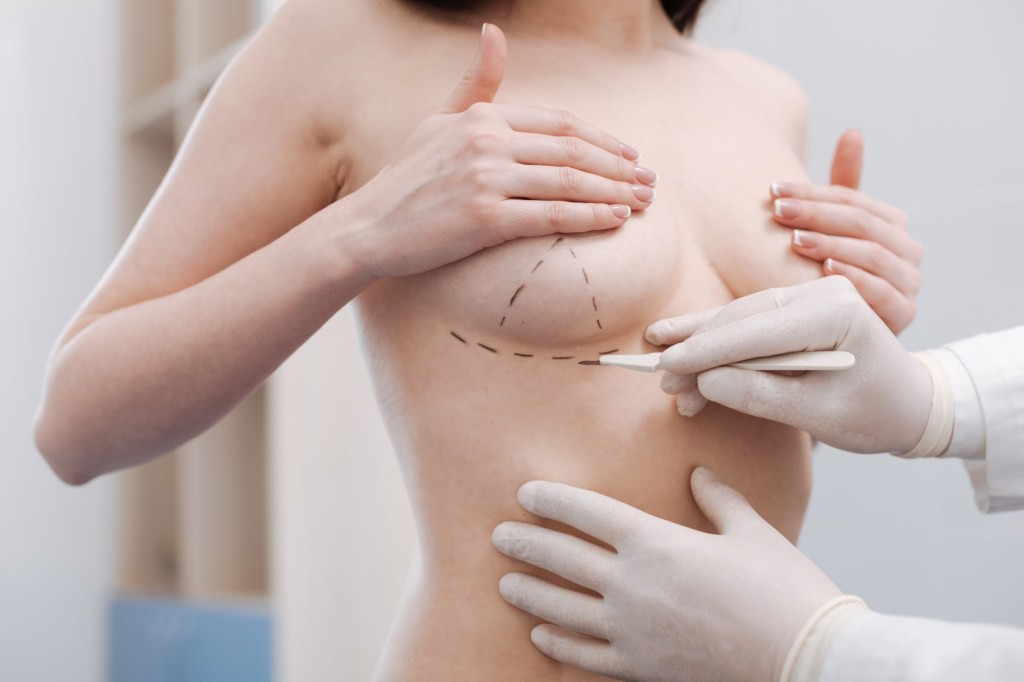 Is a Breast Reduction Surgery Right for You?