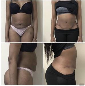 Abdominoplasty 36 years old