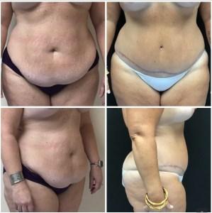 Abdominoplasty 44 years old