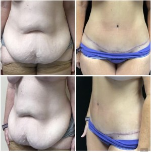 Abdominoplasty 48 years old