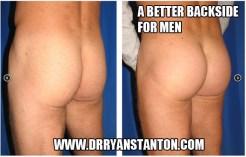 buttockimplantslosangeles420164