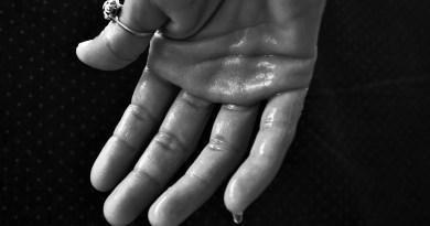 Bótox: clave para combatir la hiperhidrosis o sudor excesivo
