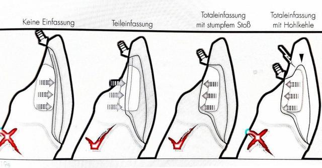 Richtige Präparation Veneers nach Lehrbuch. Illustration, Professor Belser, Dr. Magne