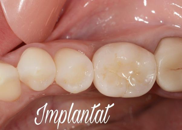 Zirkonkrone auf Implantat Labor Gredig