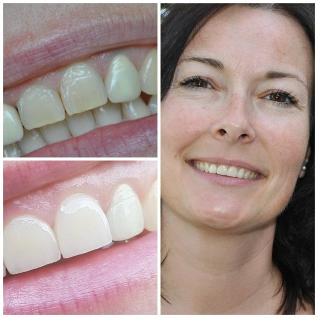 Smile make over mit Keramik Veneers