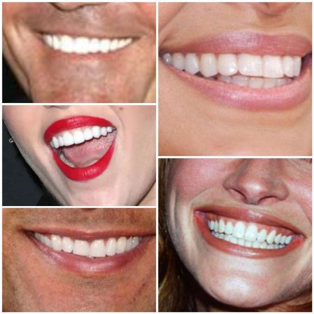 Die Zähne werden immer weisser, collage von weissen zähnen