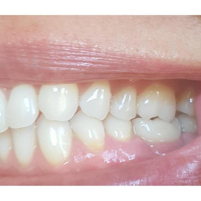 so sieht das implantat samt krone im mund dann aus