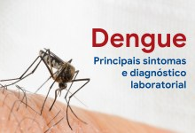Photo of Dengue – principais sintomas e diagnóstico laboratorial