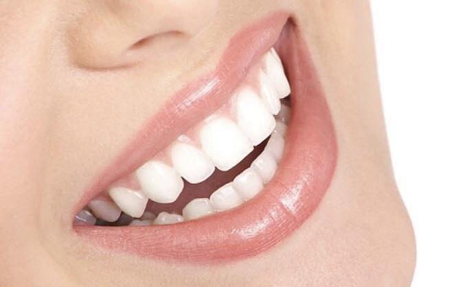 ¿Tu higiene bucal es la correcta?