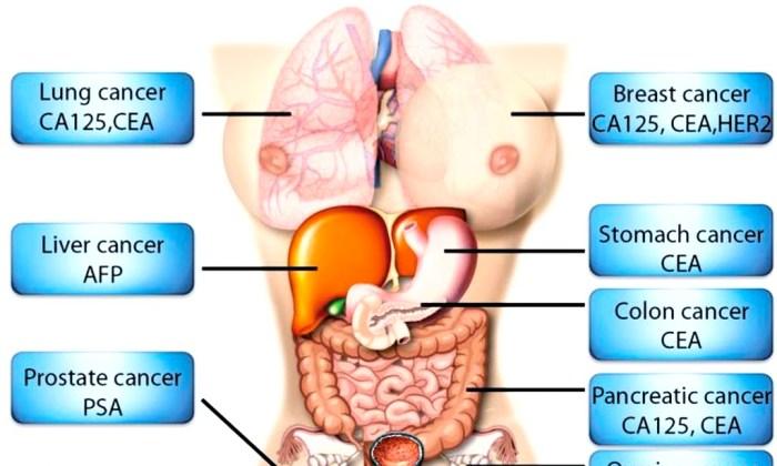 adenocarcinoma de prostata gleason 7 34 prosztatagyulladás kezelésére szolgáló masszázs