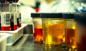 Type of urine specimens