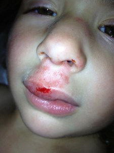 Day of injury. Swollen nose, upper lip abrasion, and a short but deep laceration to the upper lip.