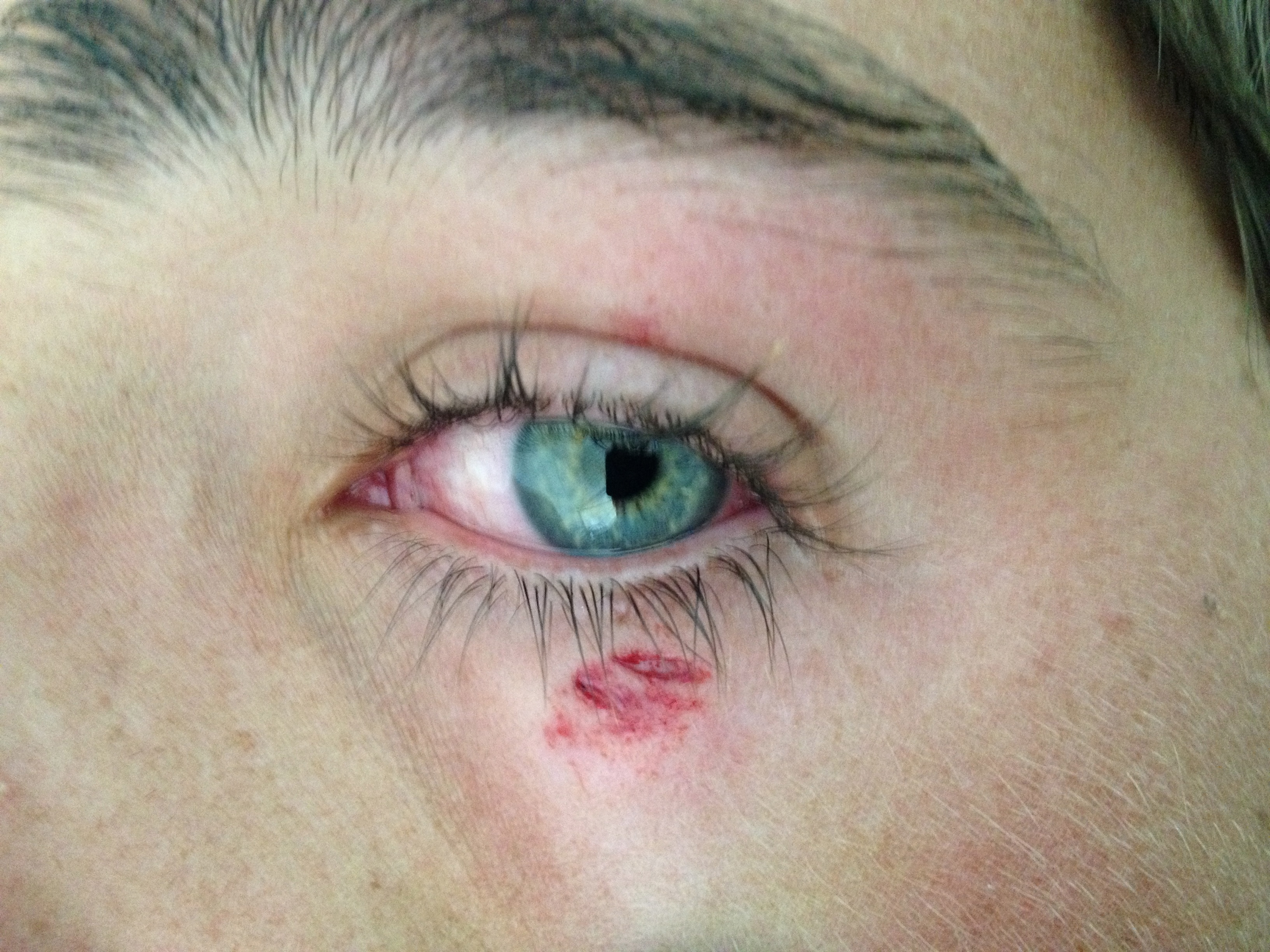 Lacerations Around The Eye Closing The Gap