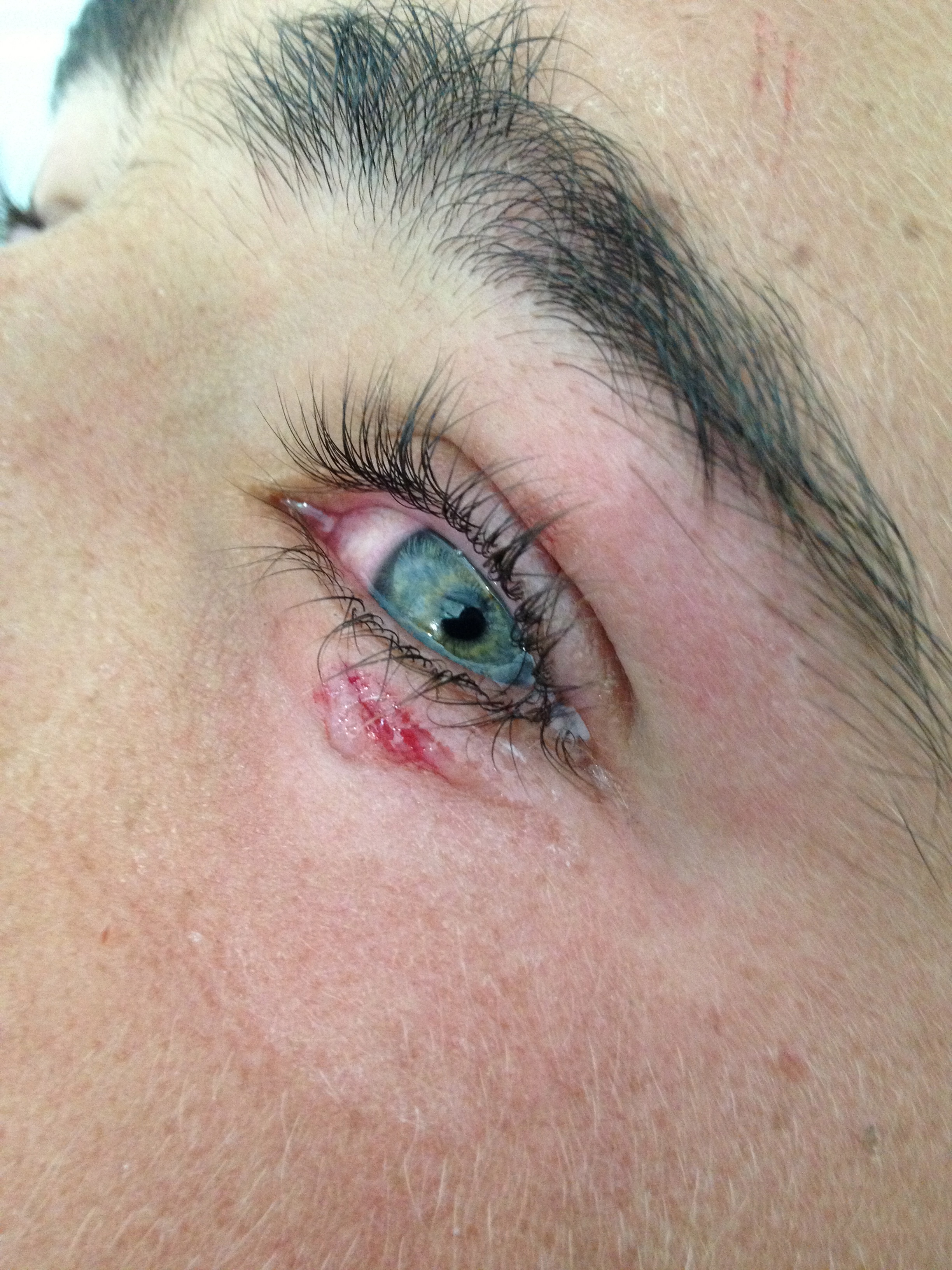 Lacerations around the Eye | Closing the Gap