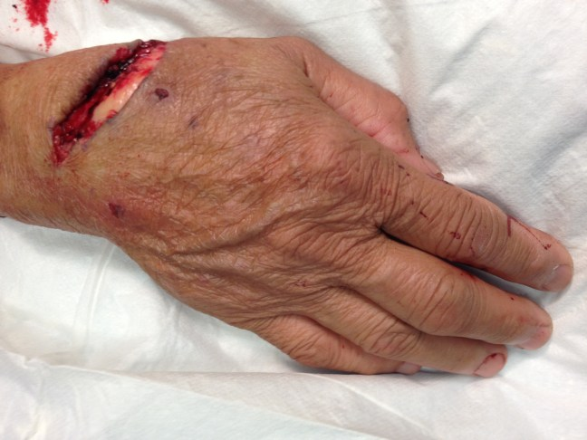 Wrist laceration caused by a skill saw.