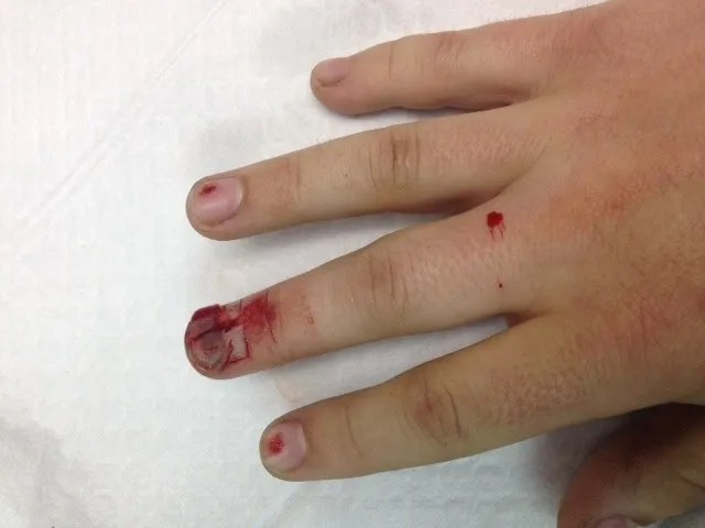A nailbed laceration caused by a skill saw.  The proximal nail fold is avulsed, and the nail is lacerated in several places.