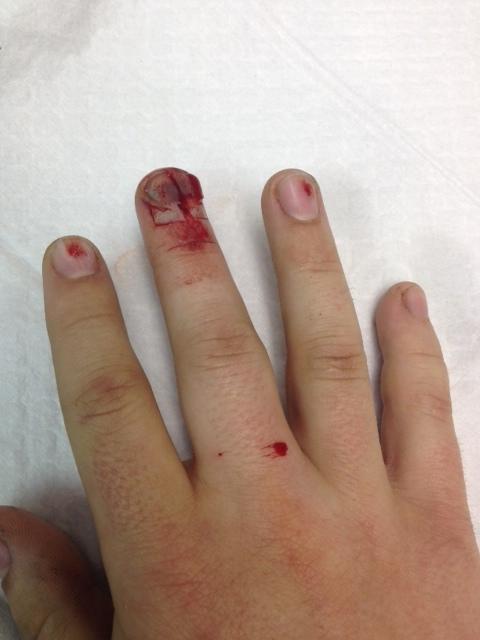 NailBed Injuries, Part II – Closing the Gap
