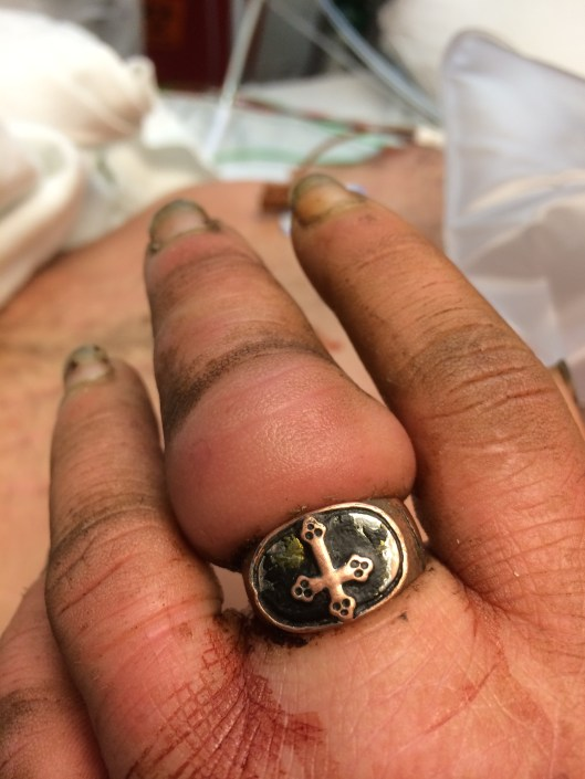 Sequelae of a tight ring left on a finger.  The patient was unconscious for several hours after abusing drugs, and thus ignored the swelling of his finger until it was fairly severe.