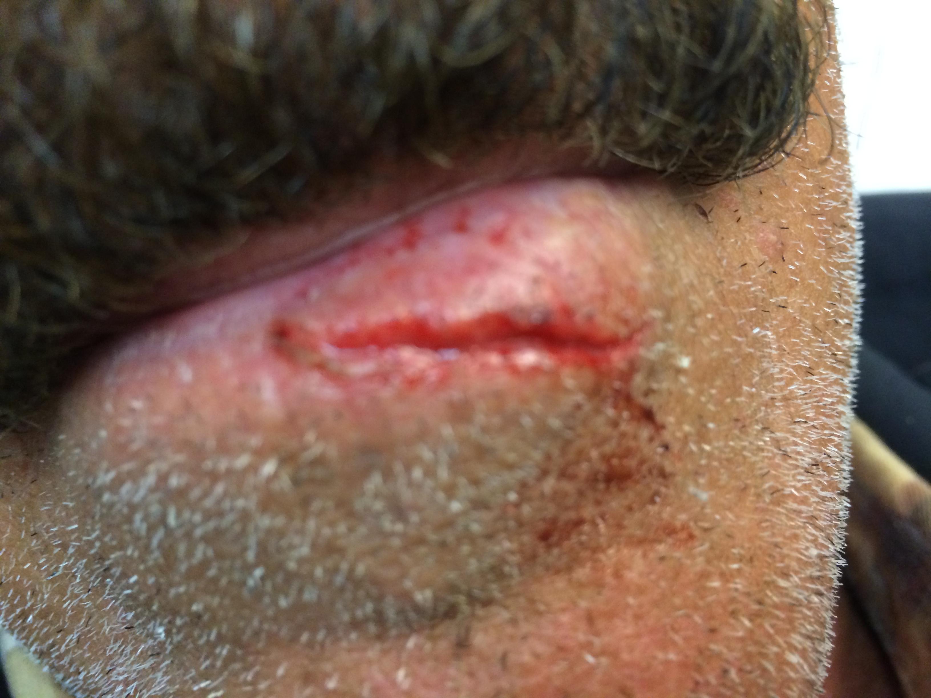 Lip Laceration Repair | Best Dental in Houston, TX