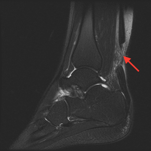 Complete calcaneous (Achilles) tendon laceration, with 2.5 cm separation as noted by red arrow.