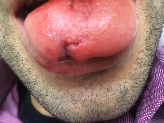 A tongue laceration greater than 1 cm which splays the margins of the tongue would likely benefit from primary repair.