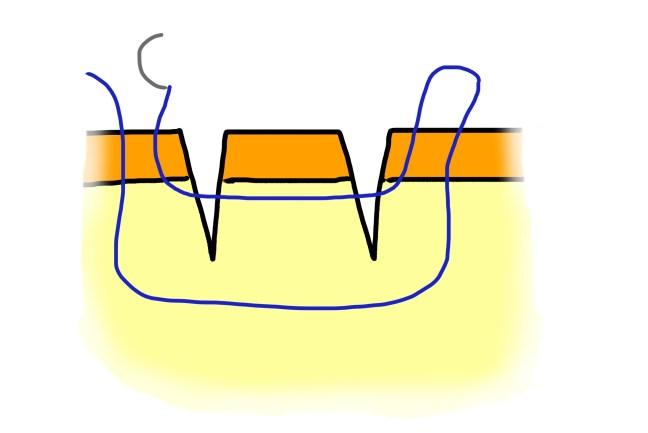 parallel lacerations vertmattressB