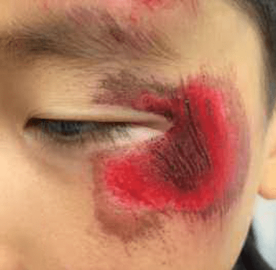 This young boy was pushed on to asphalt and sustained this significant facial abrasion.  Without detail work to remove the dirt from the blackened area, he is at significant risk of an untoward cosmetic outcome.