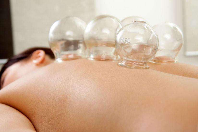 cupping therapy massage la clinica salon and day spa