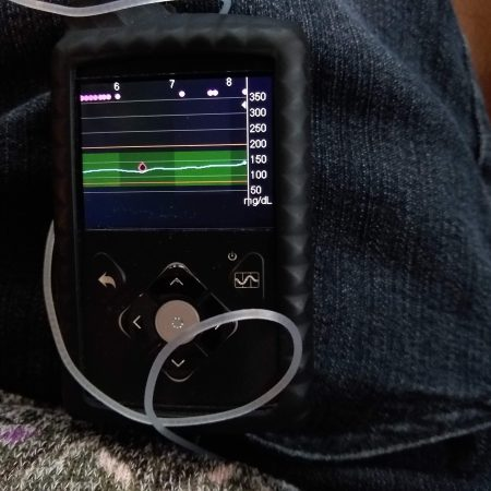 Medtronic Minimed 670G Insulin Pump shows a fairly flat graph