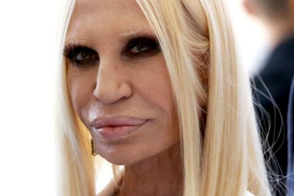 Донателла Версаче до и после операции пластики. Фото в ...